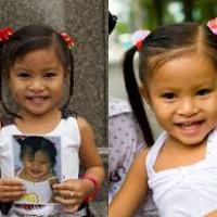 dunghiep - Nụ cười trọn vẹn cho những em bé nghèo - phẫu thuật mổ miễn phí cho bé bị sứt môi